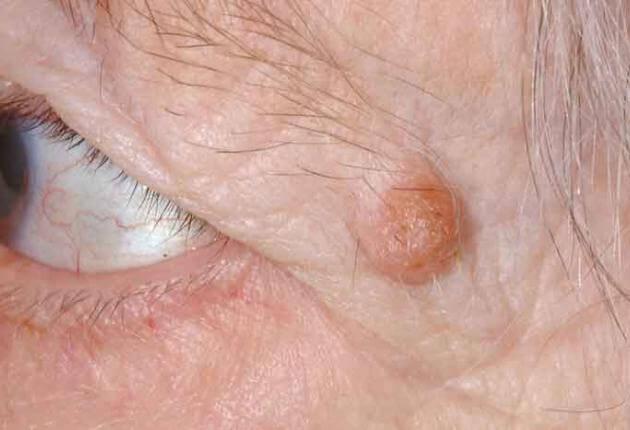 papilloma lid skin