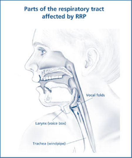 respiratory papillomatosis medication what is human papillomavirus in hindi