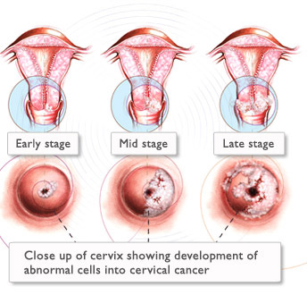 o detoxifiere corecta a organismului hpv cancer de cabeca e pescoco