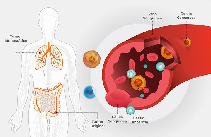 ovarian cancer yoga hpv na lingua sintomas