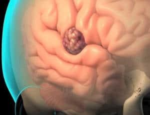 cancerul la colon simptome