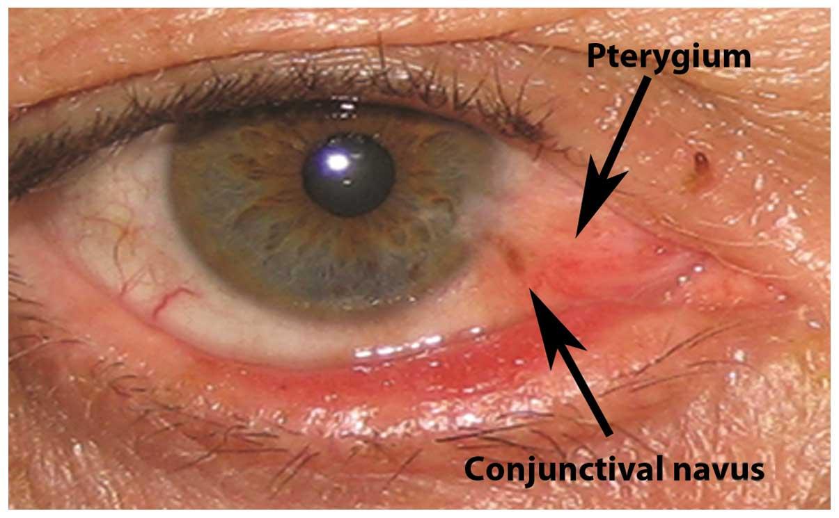 human papilloma virus ocular