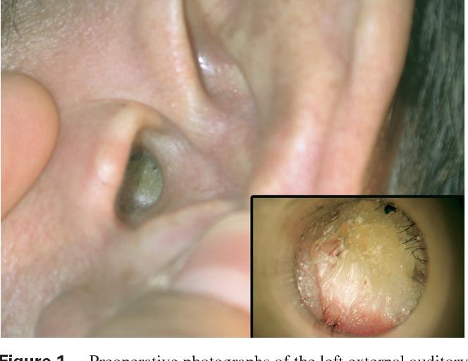 squamous papilloma of ear