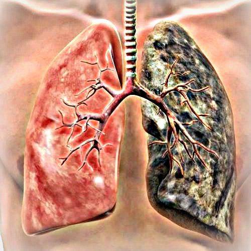 cancerul bronhopulmonar tratament
