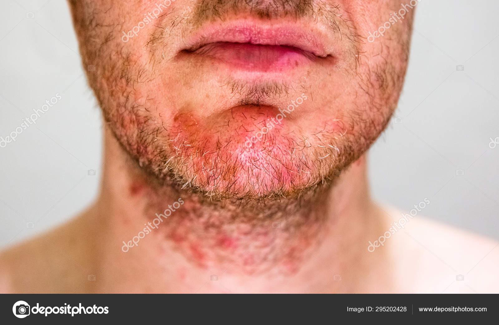 dermatite barba padezi srpski vezbe