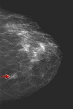 intraductal papilloma surgery scar
