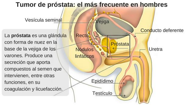 Invazia perineurală a tumorii de prostată 11