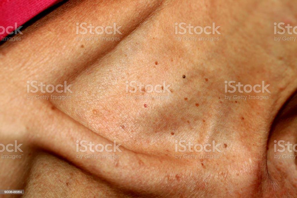 pictures of papillomas is respiratory papillomatosis contagious