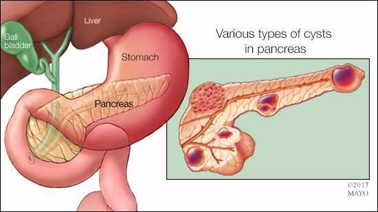 cancer de pancreas benigno