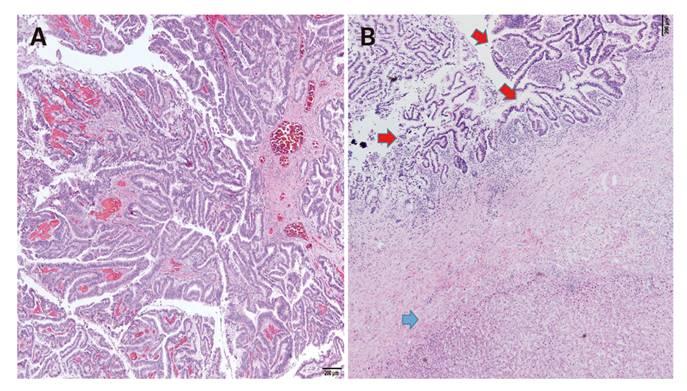 papilomatosis intraductal