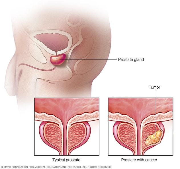 cartea detoxifierea ficatului in 9 zile