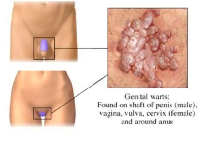 cancer gastric inoperabil hpv current research