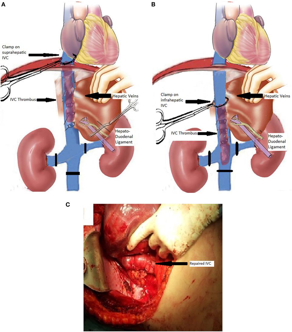 cancer vena renal