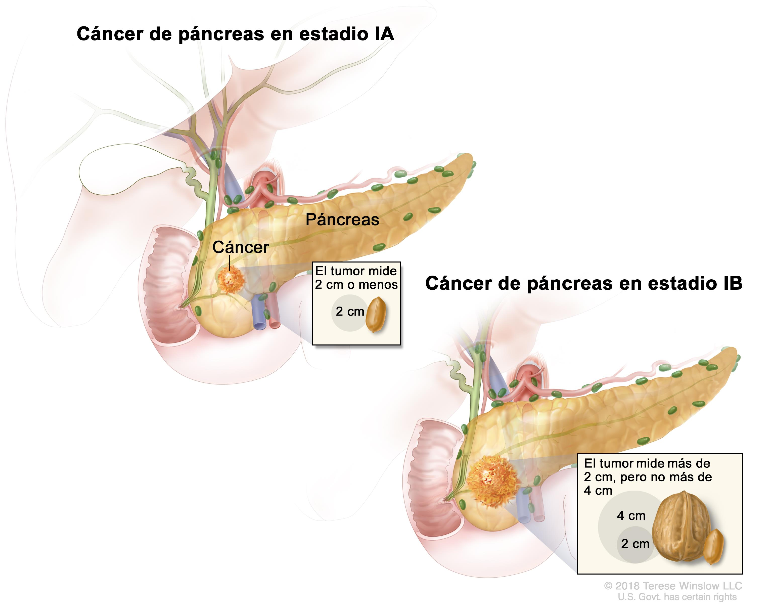 cancer de pancreas nivel 2 hpv head and neck cancer metastasis