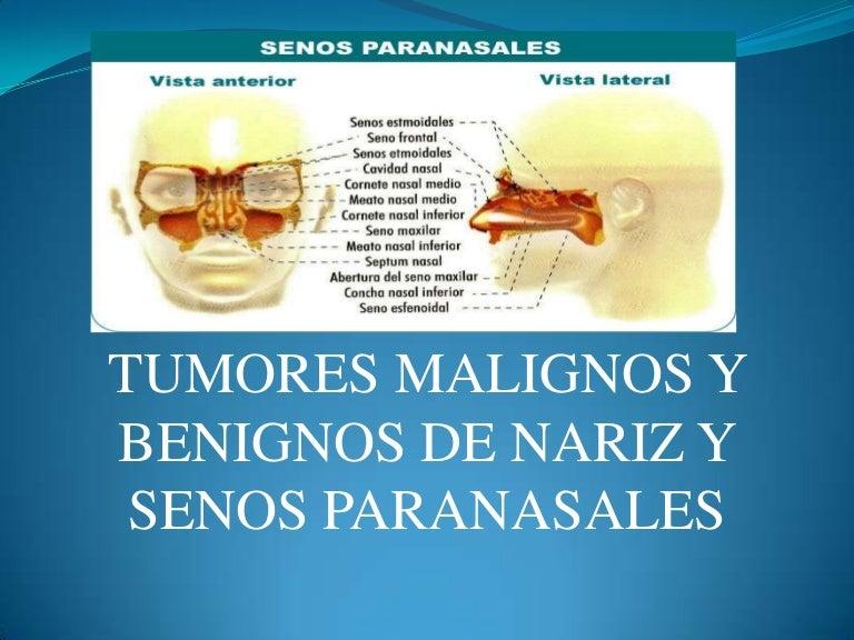 papiloma queratosico benigno definition of papilloma in medical terminology