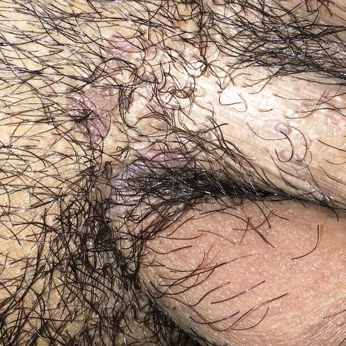 virus del papiloma humano es una enfermedad venerea