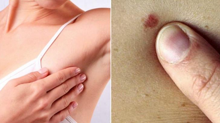 cancer mamar la barbati simptome
