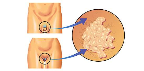 virus del papiloma humano hombres prueba