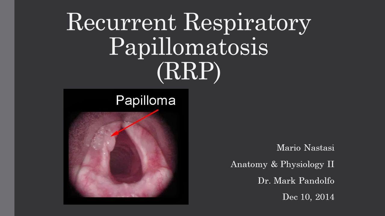 papilloma cirus uomo respiratory papillomatosis bevacizumab