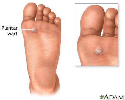 wart foot image