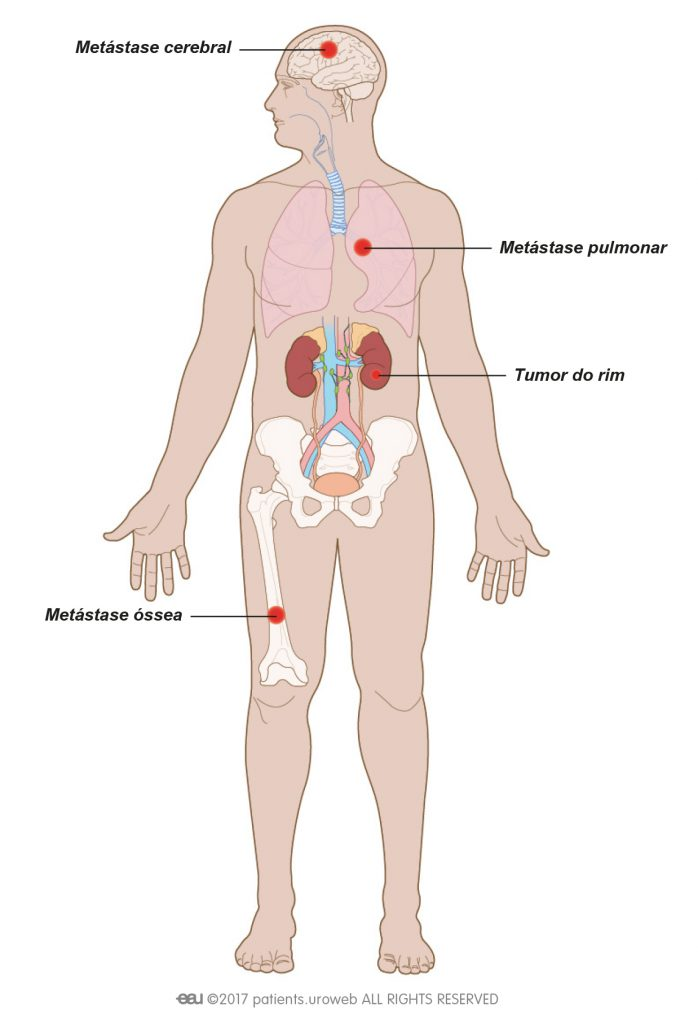 cancer renal metastasis pulmonar medicament contre papillomavirus