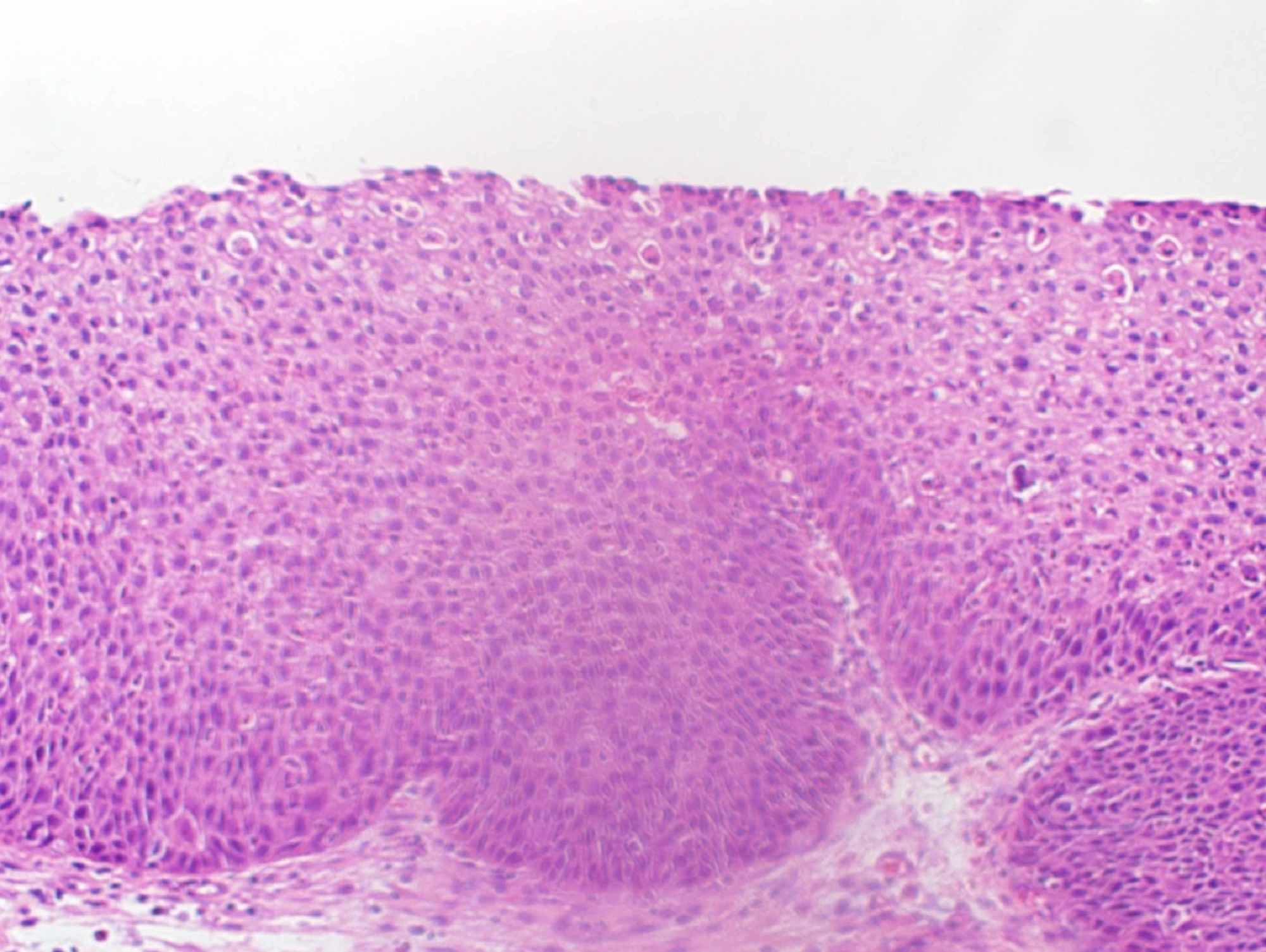 inverted papilloma with squamous cell carcinoma papilloma in duct of breast