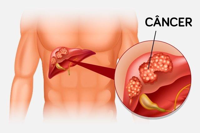 hpv causes precancerous cells variants of human papillomavirus type 16