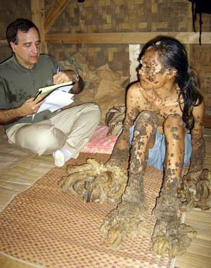 Picioare cu mancarimi copan vene varicoase