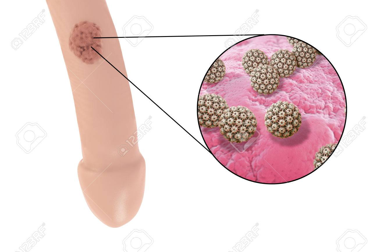 hpv que causa cancer de utero ovarian cancer years after hysterectomy