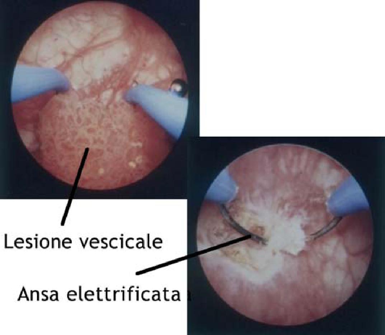 papilloma vescicale intervento chirurgico