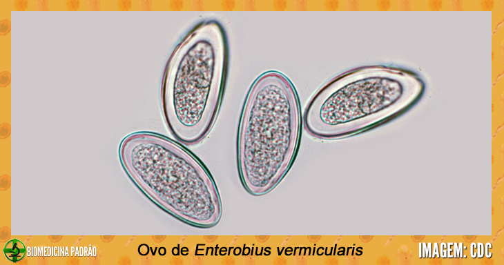 Paraziti intestinali oxiuri Enterobius vermicularis și gregorii