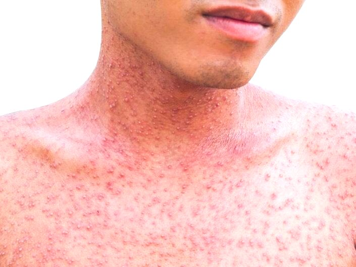 cancer de piele benign