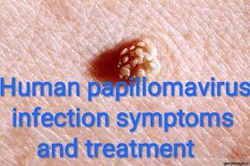 human papillomavirus infection medication