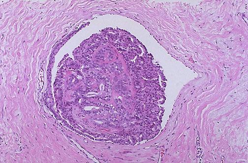 Managementul interdisciplinar al unei paciente cu tumoră mamară rară - prezentare de caz