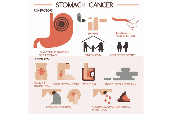 abdominal cancer signs