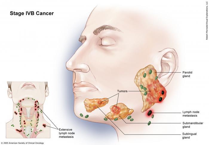 ductal papilloma salivary gland neuroendocrine cancer fatigue