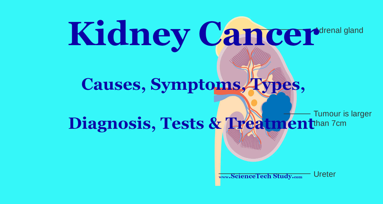 renal cancer tests helmintiaze