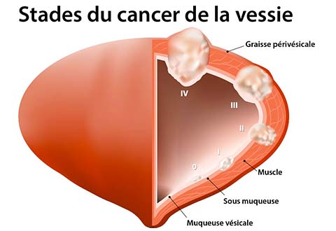 cancer feminin de la vessie verme oxiurus imagens