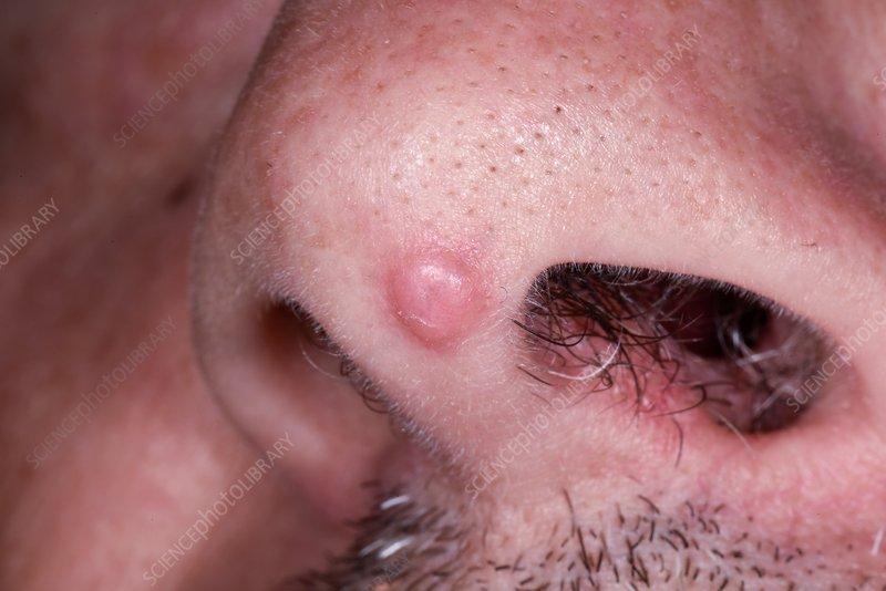 squamous papilloma cure