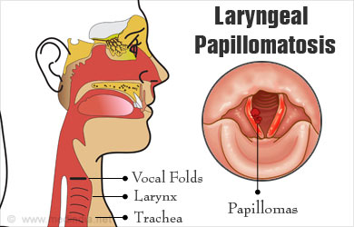 what does laryngeal papillomatosis look like