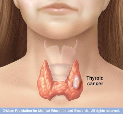 cancerul pulmonar este transmisibil