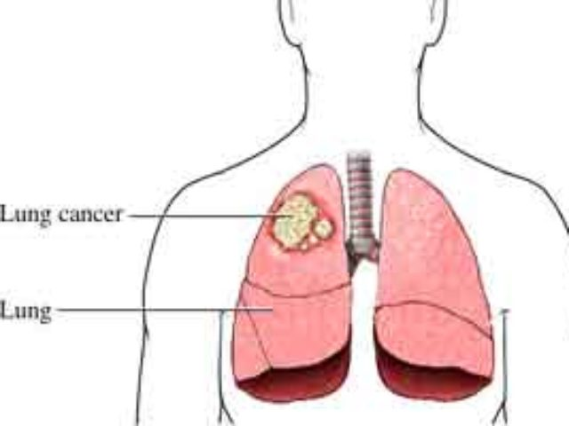 aggressive cancer in lungs