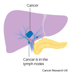 cancerul a metastazat - Traducere în engleză - exemple în română | Reverso Context