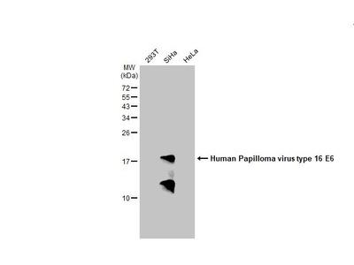 papilloma virus piscina