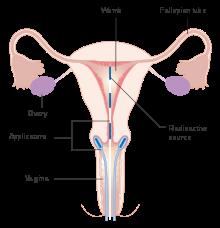 cervical cancer cells - Traducere în română - exemple în engleză   Reverso Context