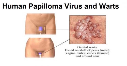 papilloma infection