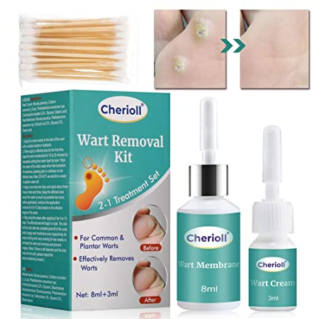 wart treatment kit peritoneal cancer foundation