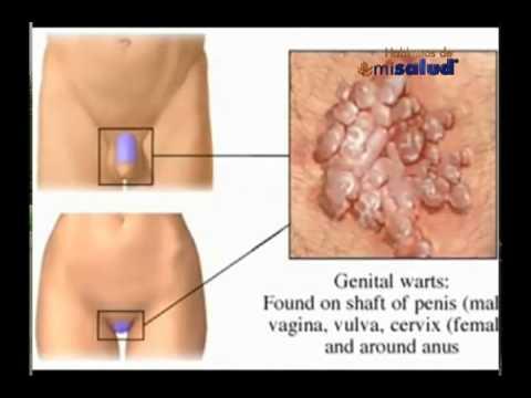 paraziți intestinali la copii colon cancer abdominal distension