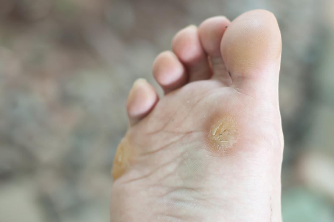 foot wart reason hpv cancer de cabeza y cuello