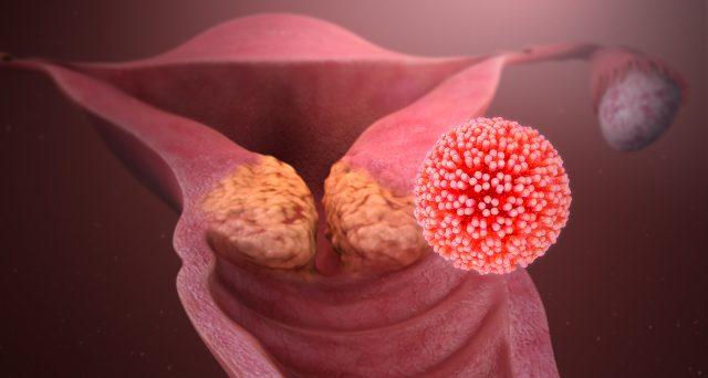 virus del papiloma humano consecuencias hpv virus zena